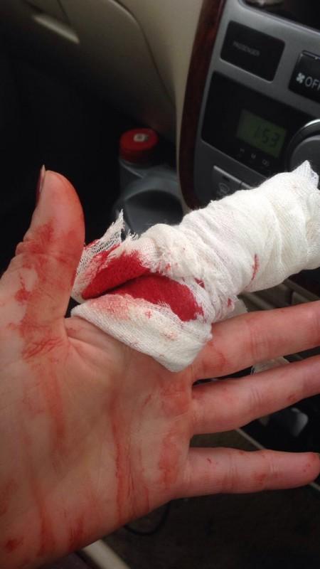 фото порезанный палец